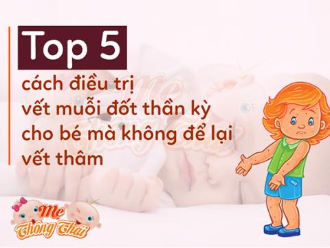 Top 5 cách điều trị vết muỗi đốt thần kỳ cho bé mà không để lại vết thâm