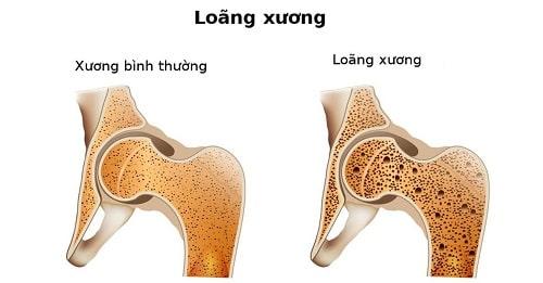 Bệnh loãng xương là gì? Dấu hiệu nhận biết nhanh về bệnh loãng xương